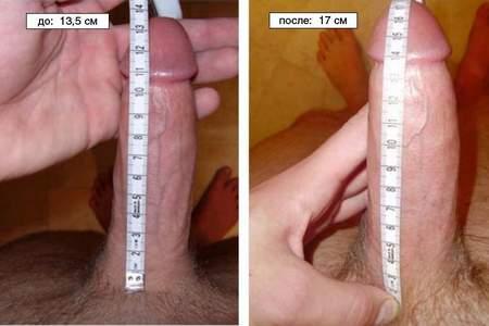 пенис до и после терапии