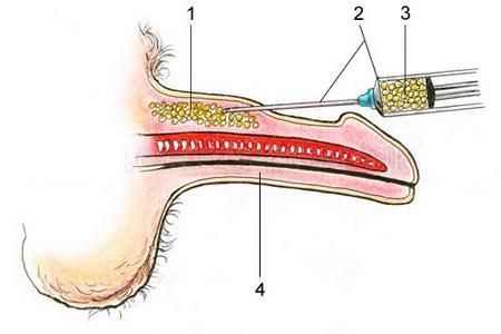 схематическое изображение инъекции