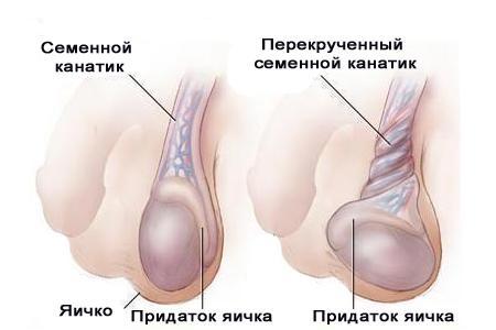 семенной канатик в норме иперекрученный