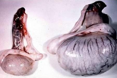 атрофия яичек