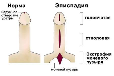 половой член нормальный и с эписпадией