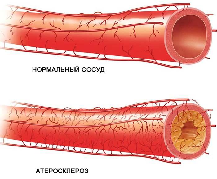 атеросклероз и нормлальный сосуд